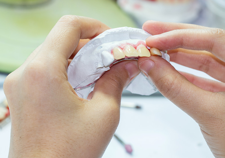 Dentures being relined