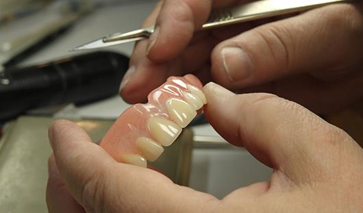 Repairs on dentures
